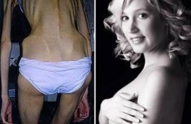 Penderita Anoreksia Terkenal di Dunia
