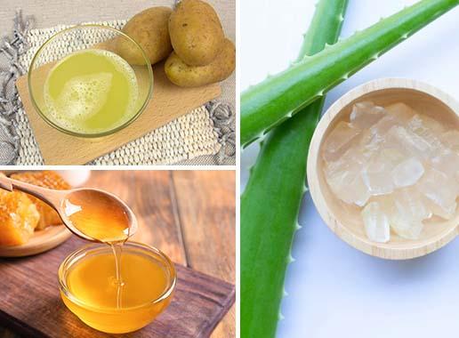 Potato, Honey & Aloe vera Hair Mask