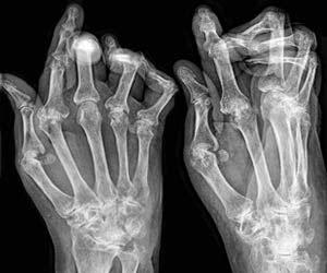 artritis-reumatoid