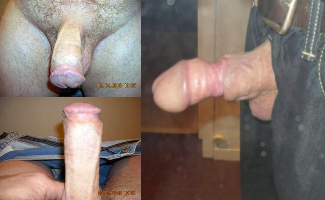 This brilliant clitoridectomy female circumcision remarkable