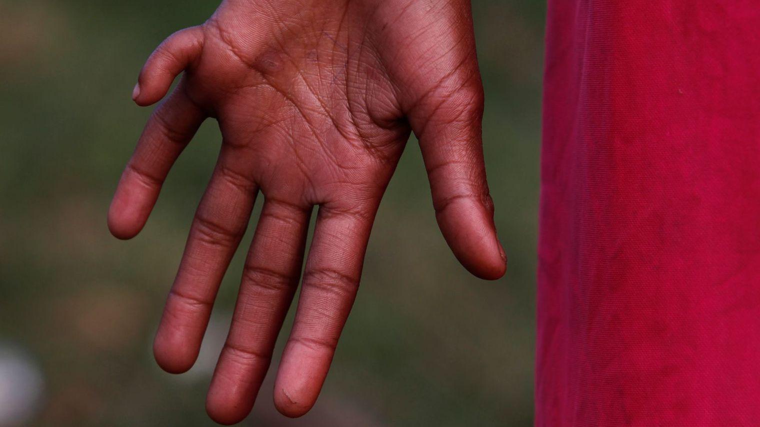 Malformaciones Congénitas: Polidactilia