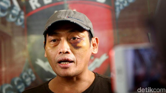 Kerap Didatangi Orang Asing, Relawan Jokowi Ninoy Karundeng Ajak Keluarga Tinggalkan Rumah