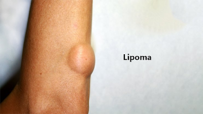 lipoma causes and treatment