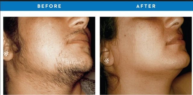 Natural permanent hair removal