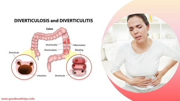 Diverticulitis The cause and treatment of this disease