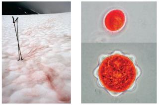 Adaptasi Mikroorganisme Terhadap Suhu