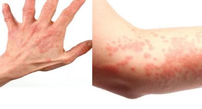 Cara Mengobati Gatal Alergi Pada Kulit Tangan Dan Kaki