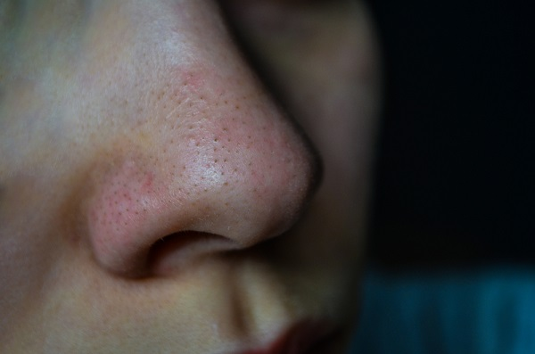 Blackhead Treatment - Try to treat blackheads naturally