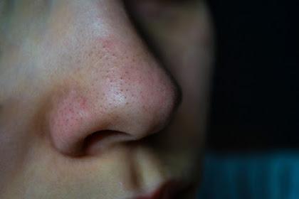 Blackhead Treatment - Try to treat blackheads naturally
