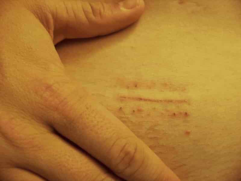 Tratamentul chirurgical pentru varice