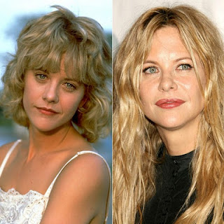 Kate Beckinsale Plastic Surgery Before And After Meg Ryan
