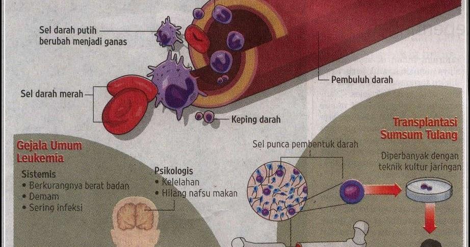 Ciri-Ciri Kanker Darah Atau Kanker Sumsum Tulang Belakang