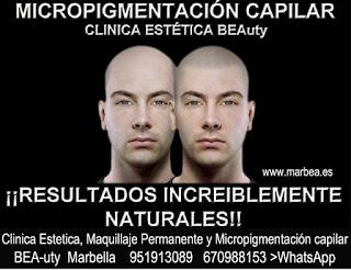 MICROPIGMENTACIÓN CAPILAR CLÍNICA ESTÉTICA, MICROPIGMENTACIÓN CAPILAR, MAQUILLAJE PERMANENTE facial con  los mejores especialistas en micropigmentación y maquillaje permanente en Marbella  y Malaga