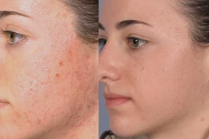 6 Skincare Tips that got rid of acne