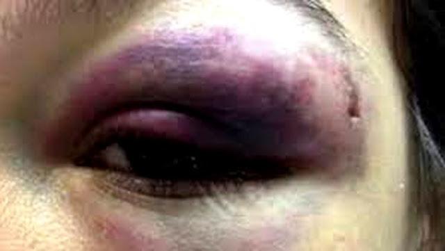 COVARDIA:Marido agride esposa e arremessa tijolo em criança que chorava