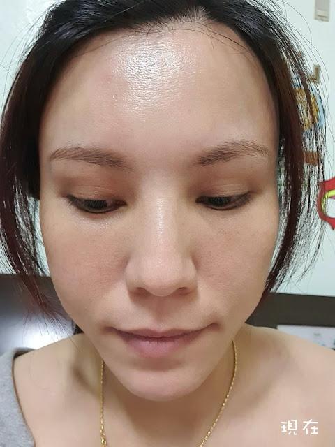 眼袋手術後一個月
