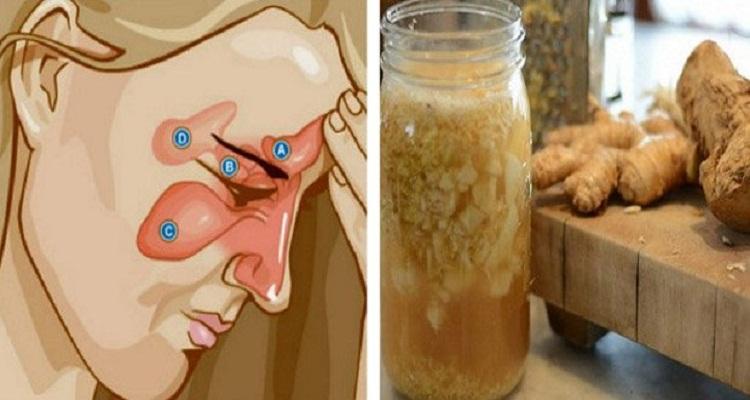 تخلصوا من اختناق الأنف و السينوزيت ( التهاب الجيوب الأنفية )  بمكونين فقط
