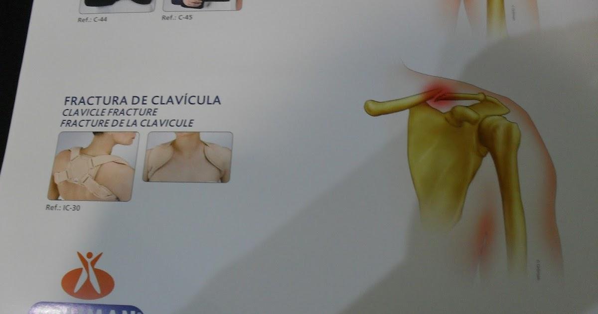 Soportes para fracturas de clavicula ortopedia virgen de for W de porter ortopedia