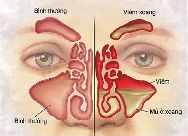 Hình ảnh thể hiện giữa bị viêm xoang và không bị viêm xoang
