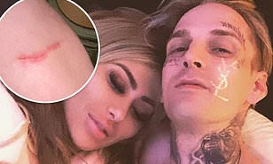 Aaron Carter's girlfriend arrested for domestic violence after scratching singer's arm