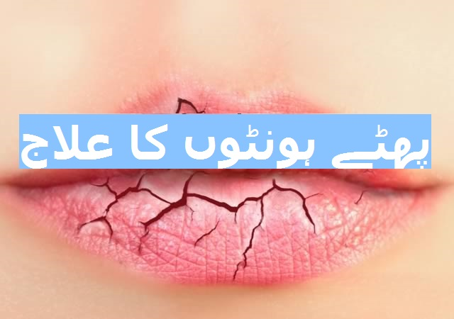 phate honton ka ilaj, dry cracked lips treatment, lips problem white, lips infection pictures, lips ko patla karne ka tarika, cracked lips remedy, cracked lips theek karne k totkay in urdu