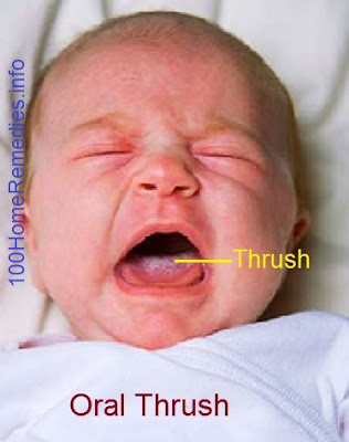 Thrush in Baby's Mouth