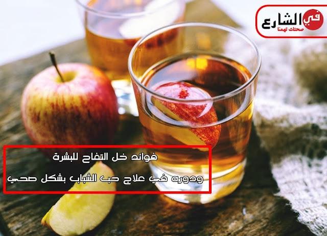 فوائد خل التفاح لعلاج حب الشباب