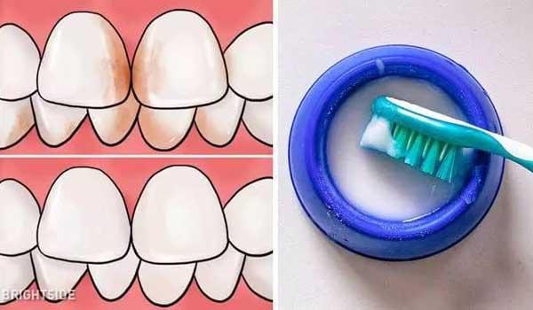 cara menghilangkan karang gigi dengan baking soda