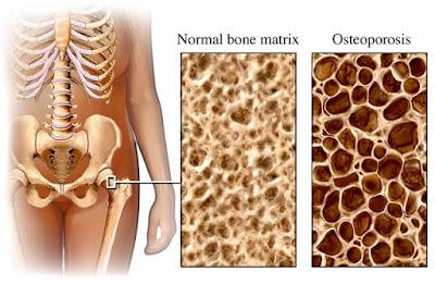 Cara mengatasi tulang keropos secara alami