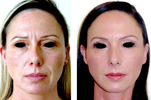 Natural Face Lift
