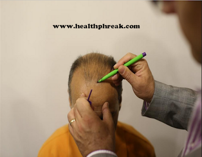 hair loss, baldness, 3 Things to Consider About Hair Transplant Surgery, Hair Transplant Surgery