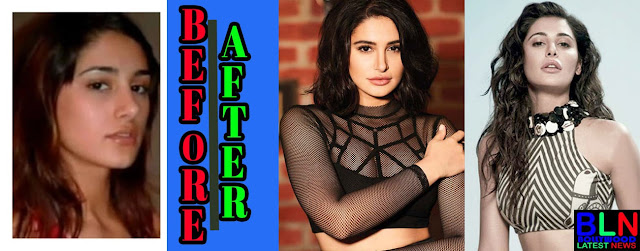 NARGIS FAKRI Bollywood Actresses Before and After Plastic Surgery