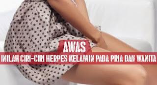 Cara Menyembuhkan Penyakit Kulit Herpes