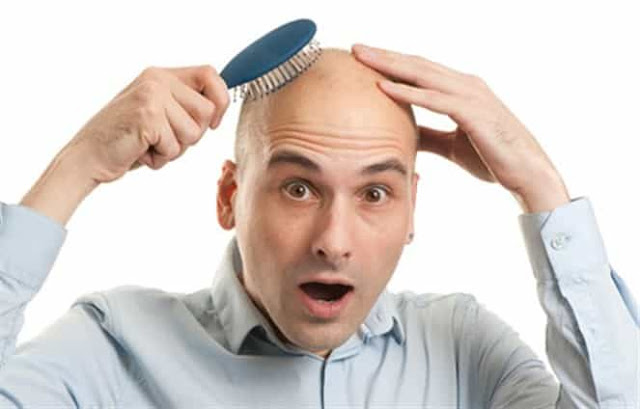 تساقط شعر الشباب