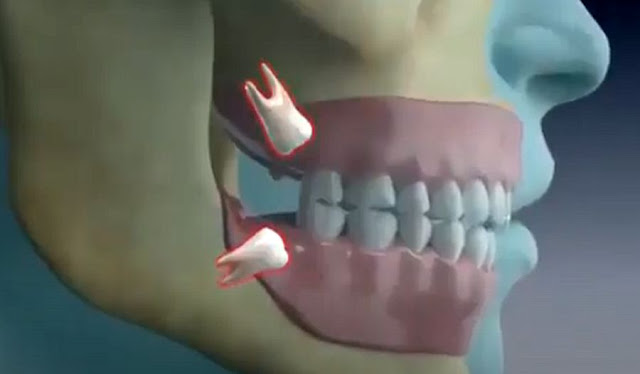 WISDOM TEETH: How are they extracted? Animation 3D