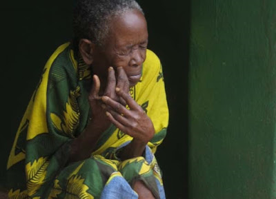 9 Old Woman affected by Leprosy in Tanzania