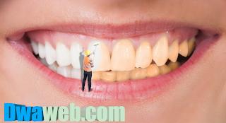 يجب الاهتمام بنظافة وبياض الأسنان دائمًا
