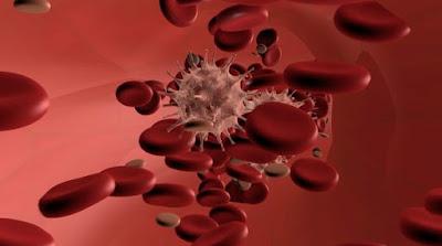 leucemia-causas-e-tratamento
