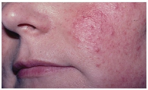 tratamiento rosacea metronidazol