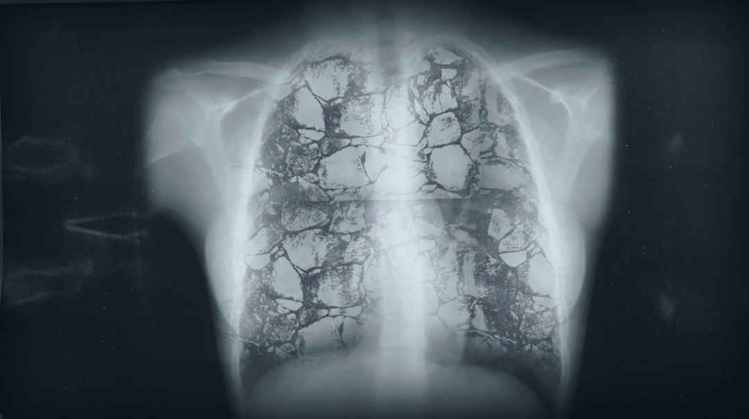 Mesothelioma - Causes, Symptoms, Diagnosis and Treatment