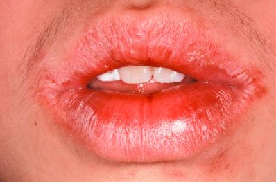 克罗恩病的口唇水肿