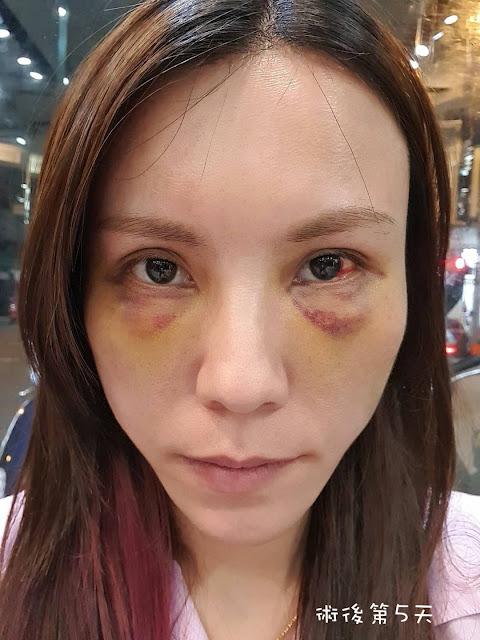 眼袋手術後第5天