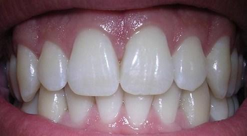 Cara Alami Memutihkan Gigi Dengan Cepat