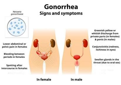 Penyebab dan gejala Gonorrhea