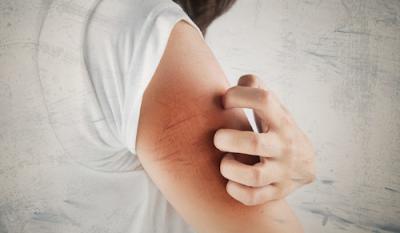 Cegah Alergi dengan Memahami Penyebabnya