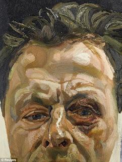 Люсьен Фрейд. Автопортрет с подбитым глазом. 1978