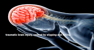 traumatic brain injury, caused by slipping and falling