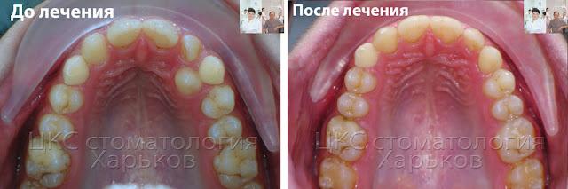 Адентия зубов. Форма зубного ряда до и после ортодонтического лечения