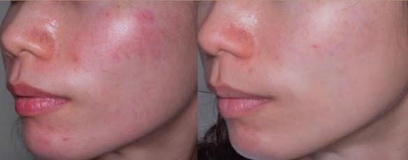Cara Menyembuhkan iritasi Dan Perih di Sela Pinggir Hidung