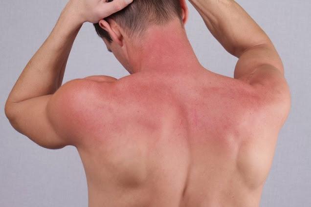 Nhiệt độ quá nóng có thể gây bỏng da